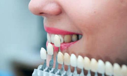 Wybielanie zębów w Poznaniu
